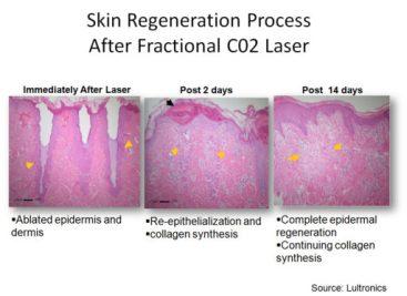Skin-Regeneration-Process-After-Fractional-CO2-Laser