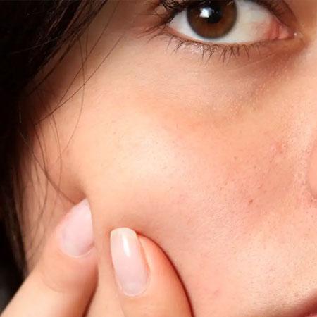 Acne-Scar