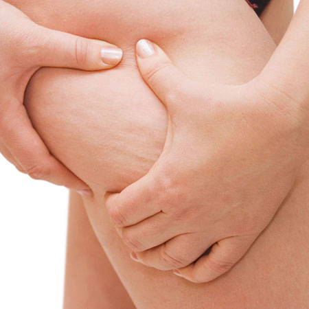 Top Cellulite Treatment