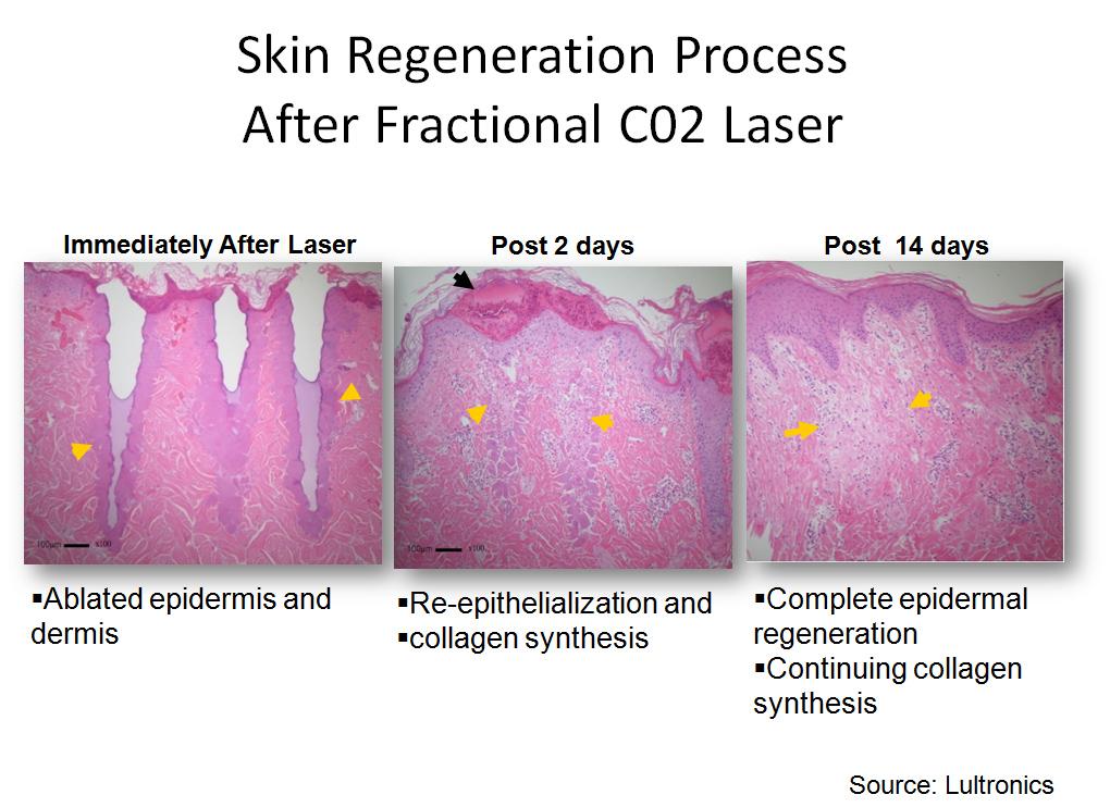 Laser-Surgery-img