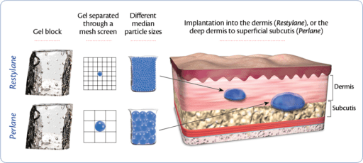 Particle-Size-Graphic