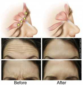 Botox-Before-After1-293x300