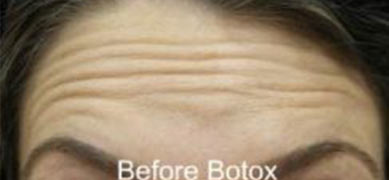 before-after-9