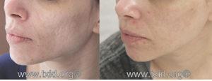 iclear_acne-01