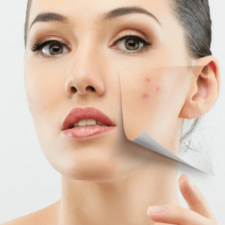 Clinical-Dermatology_Acne-Scar