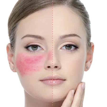 Clinical-Dermatology_Rosacea