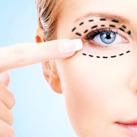 Cosmetic-Dermatology_Blepharoplasty