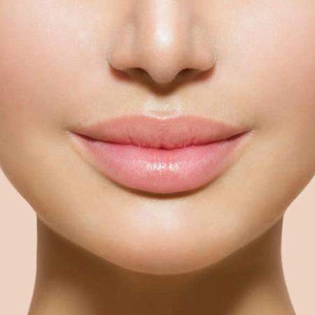 Cosmetic-Dermatology_Lip